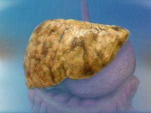 Bệnh gan nhiễm mỡ và những điều cần biết