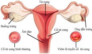 Các phương pháp chữa viêm lộ tuyến cổ tử cung