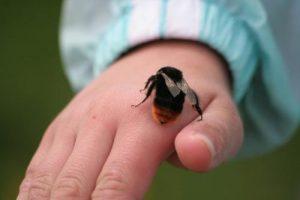 Xử trí ong đốt ở trẻ em