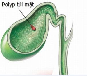 Polyp túi mật là gì? Có cần phải điều trị không?